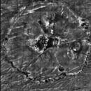 Porokeratose, Laser-Scanning-Mikroskopie, Porokeratose im Randbereich, Übersicht