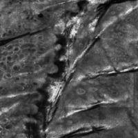 Porokeratose, Laser-Scanning-Mikroskopie, Detail: Cornoidlamelle in der Epidermis (rechts Honigw...