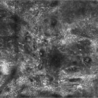 Malignes Melanom, Laser Scanning Mikroskopie: Junktionszone durchsetzt von Spindelzellen