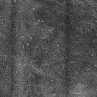 Malignes Melanom, Laser Scanning Mikroskopie, Pagetoide Zellen in der Epidermis, Übersicht