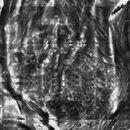 Melanozytennaevus, Laser-Scanning-Mikroskopie, homogene junktionale Nester, Übersicht