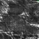 Bowenoide aktinische Keratose: Laser-Scanning-Mikroskopie, Junktionszone, netzförmig, deutlich ve...