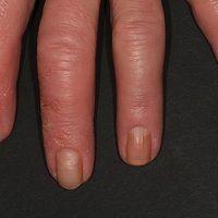Pincer-nails: chronische kontaktallergische Dermatitis mit kontinuierlicher Ausbildung von Zangen...