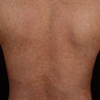 Generalisierte GVHD:chronische, generalisierte, poikilodermatische Hautveränderungen,mit zirkum...